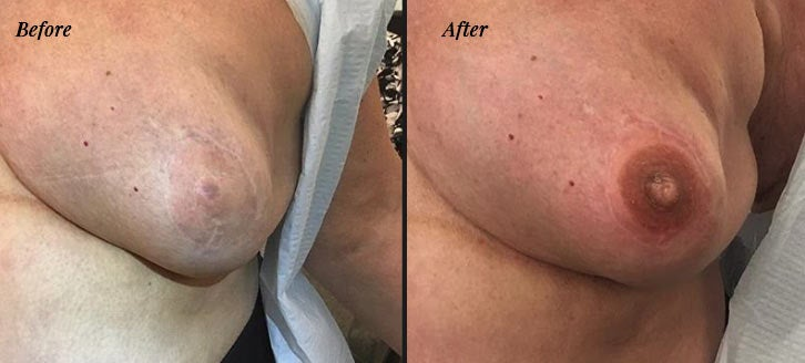 Post mastectomy areola tattoo before and after