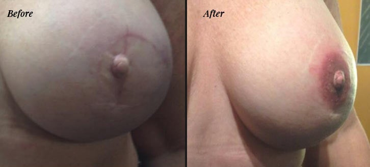 Areola tattooing before and after