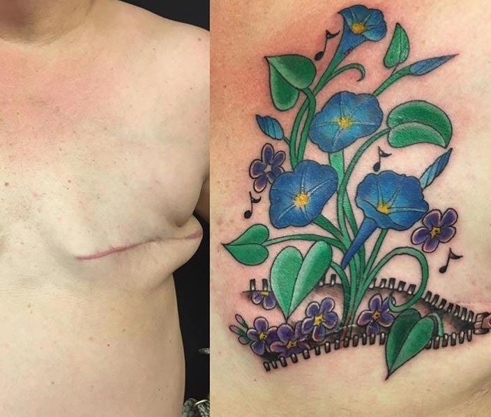 Zipper Mastectomy Tattoo - Shane Wallin
