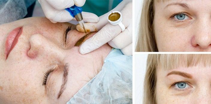 Eyebrow Microblading Example