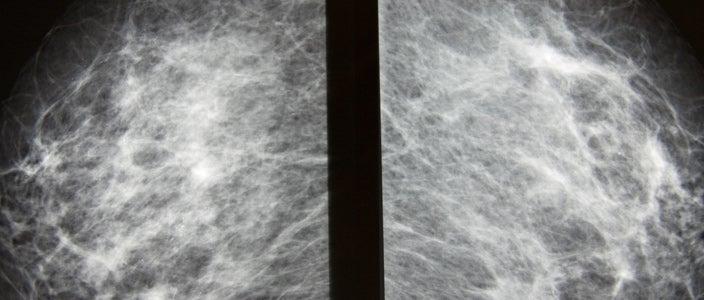 BRCA-cancer-risk-images-1