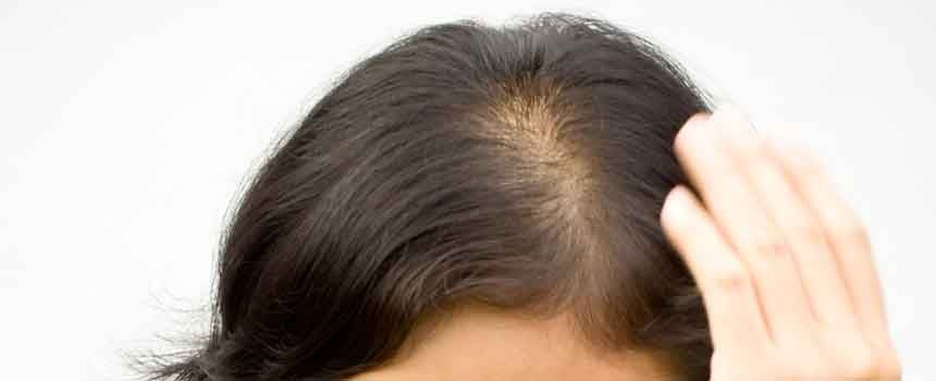 Hair toppers buying guide hair topper or wiglet by determining the type of hair loss that you are experiencing the stages of hair loss can be classified by the amount of hair solutioingenieria Images
