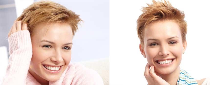 Angela Trimbur S Cancer Hair Journey