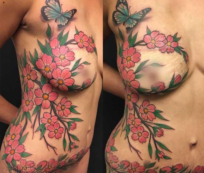 Cherry Blossom Mastectomy Tattoo - Shane Wallin